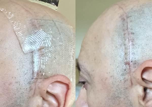 scar healing