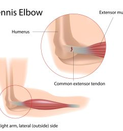 tennis elbow definition anatomy and causes [ 2171 x 1932 Pixel ]
