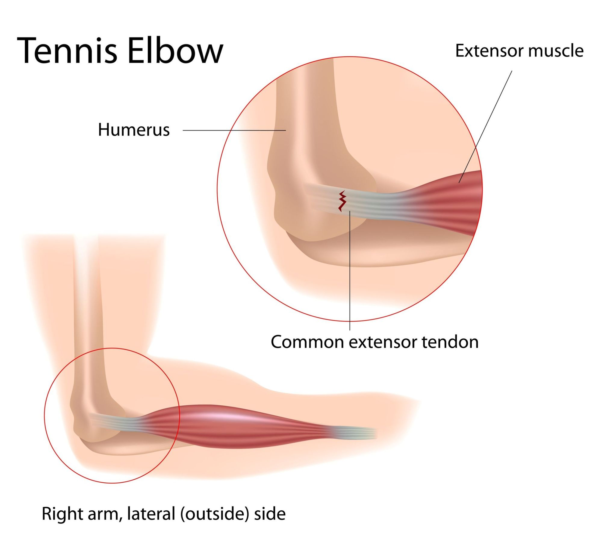 hight resolution of tennis elbow definition anatomy and causes