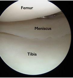 torn meniscus [ 1024 x 768 Pixel ]