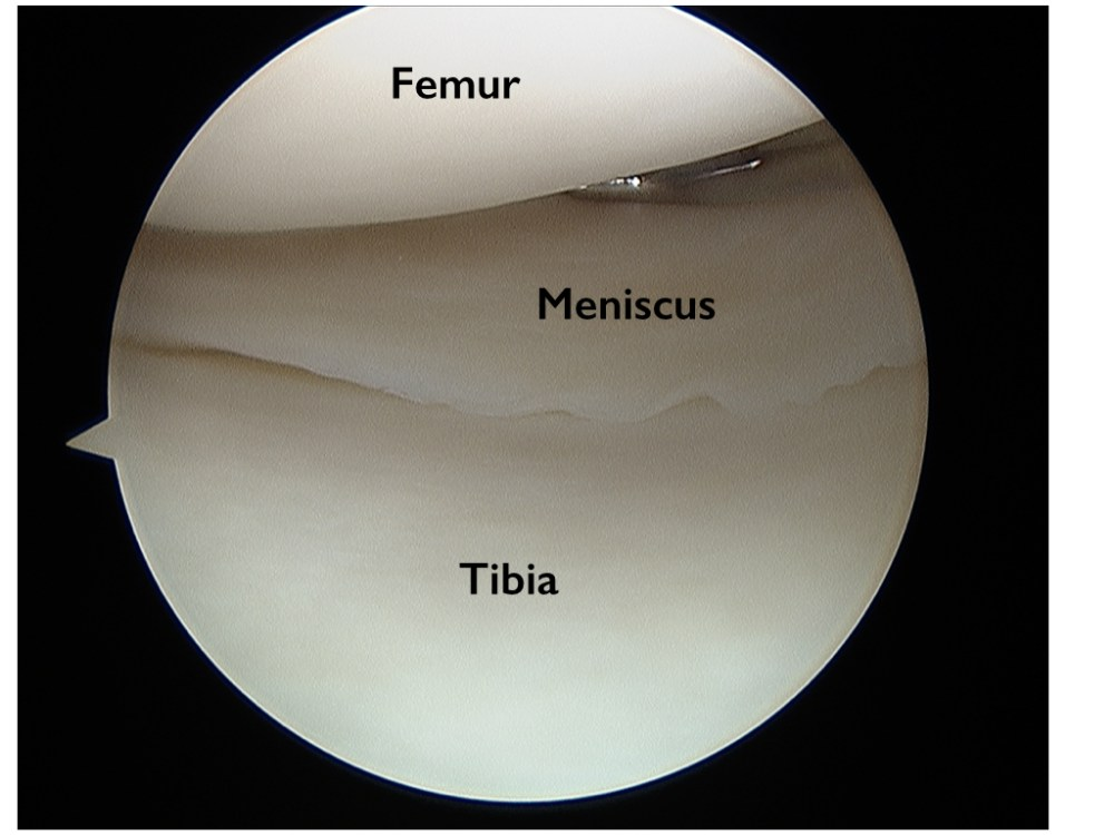 medium resolution of torn meniscus