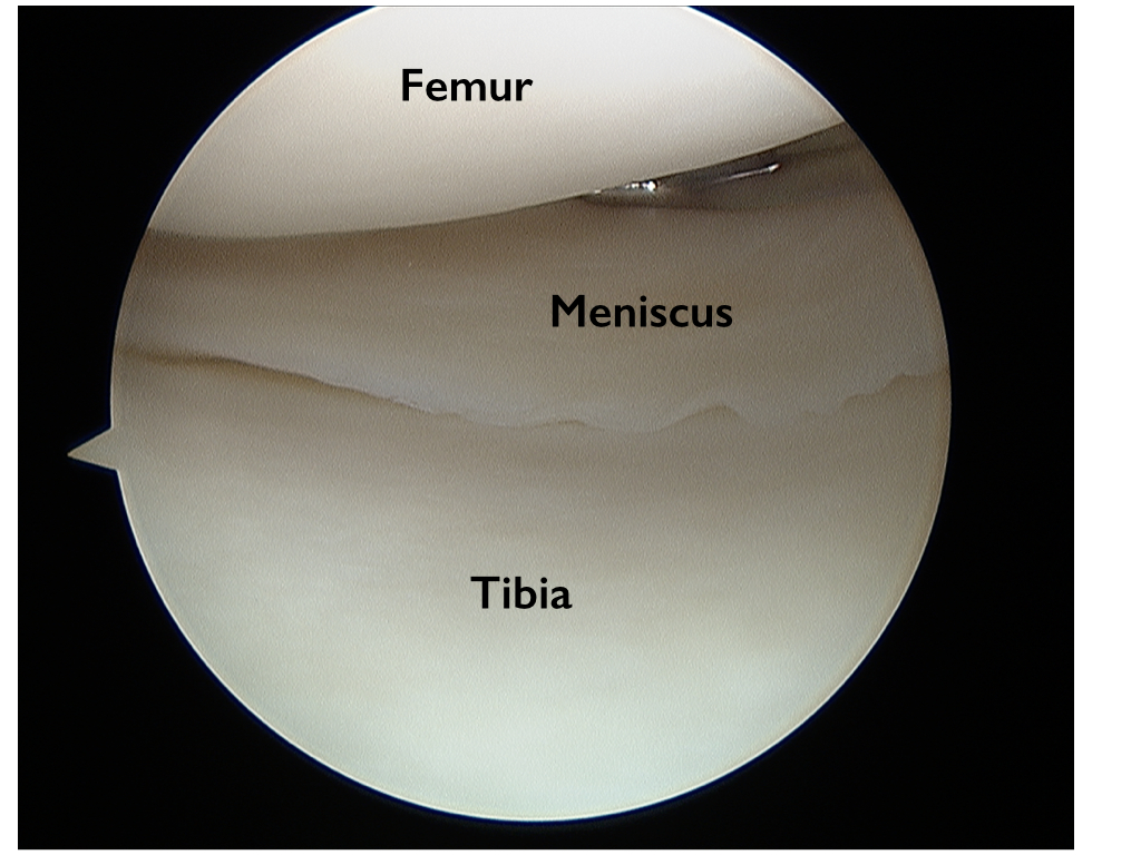 hight resolution of torn meniscus