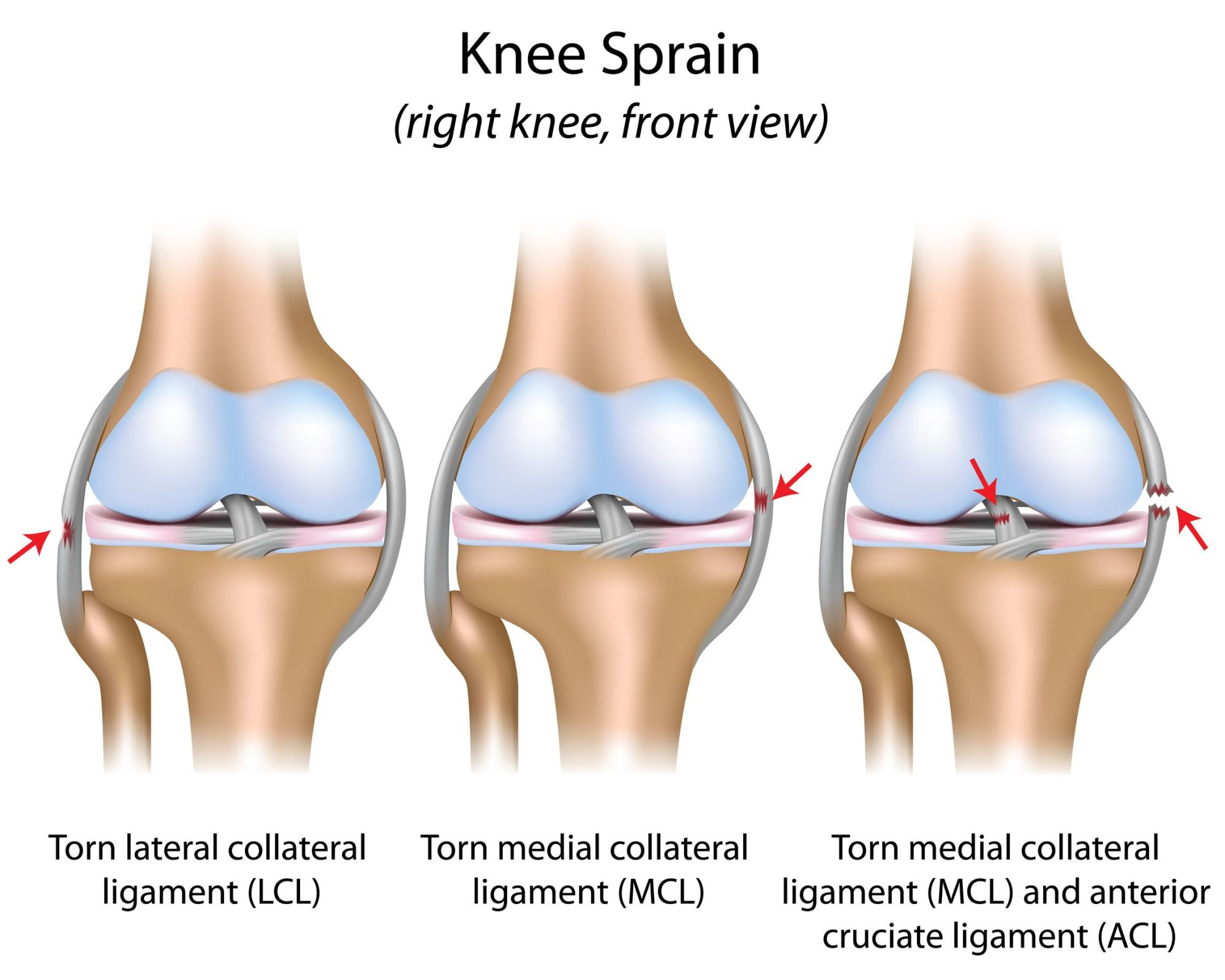 hight resolution of two boneheads video series the mcl sprain jeffrey h diagram of knee and meniscus pain from torn meniscus