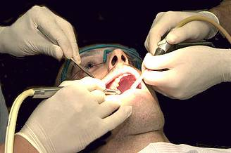 Dental work on a Sailor Amalgam Mercury drdach