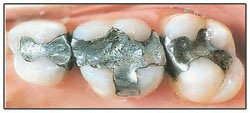 dental mercury