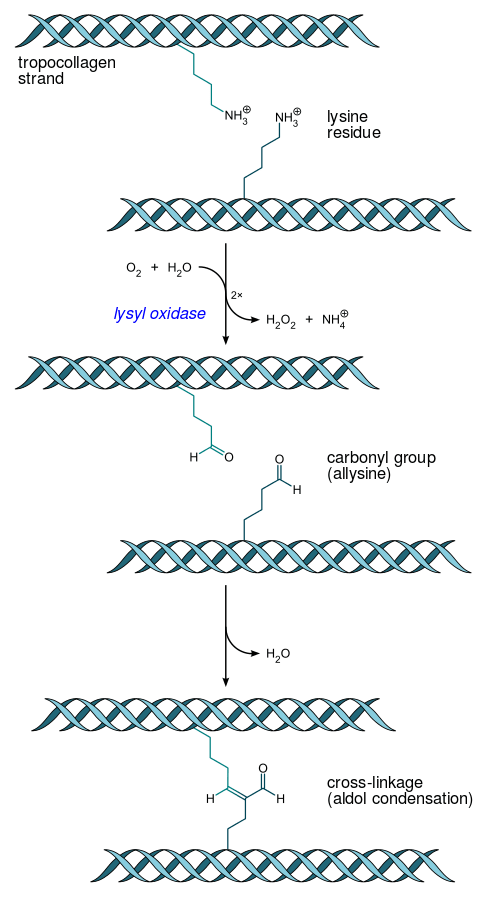 Tropocollagen_cross-linkage_lysyl_oxidase