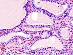Graves Hyerthyroidism Diffuse Hyperplasia