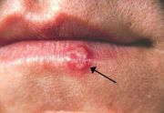 Shingles Vaccine for Recurrent Herpes Simplex