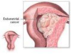 endometrial_CA_2