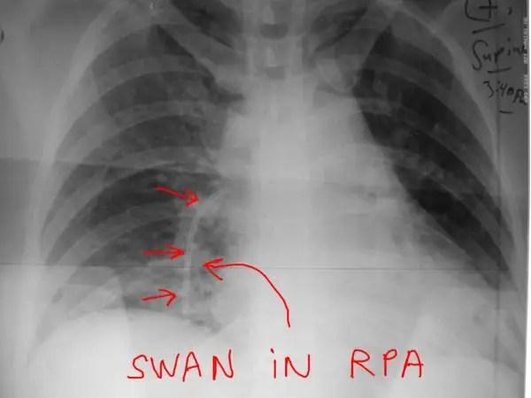 start_s_ jeffrey dach md chest xray swan FB retrieval