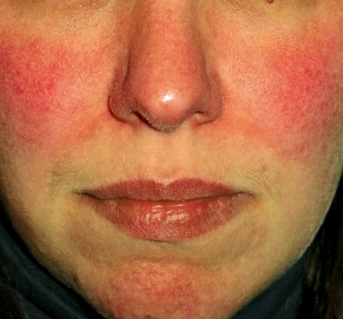 Hydrochloric acid for facial flushing picture