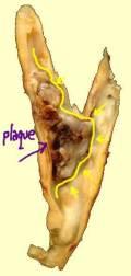 Gross-Pathology-Carotid-Plaque