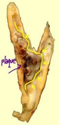 Gross-Pathology-Carotid-Plaque