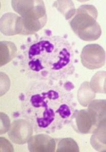 Platelet_satellitism-2