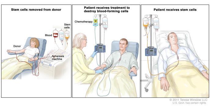 Stem Cell Transplant Allogeneic Cancer Gov CDR765030
