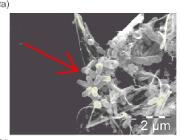Atherosclerotic Plaque Infection Electron Microscopy