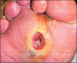 DM foot ulcer