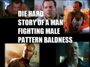 die-hard-story-of-a-man-fighting-male-pattern-baldness
