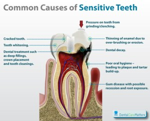 Sensitive-teeth-causes