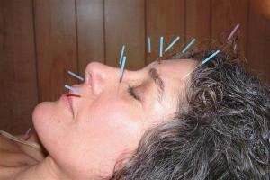 Acupunctureface