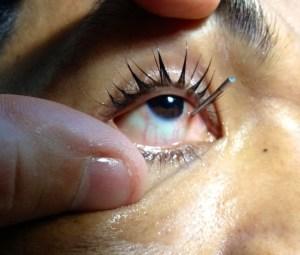 impaled eyenail