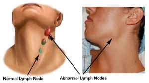 Neck-Nodes