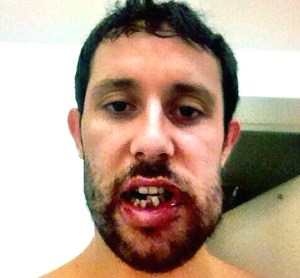 broken-jaw-photos-1