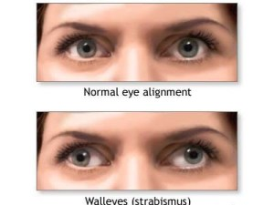 strabismus-wall-eyes
