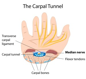 Carpal-tunnel-syndrome-picture
