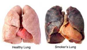 bronchitis smokers-lungs_1