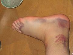 halloween ankle sprain