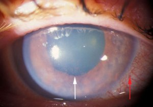 acute-angle-closure-glaucoma_3