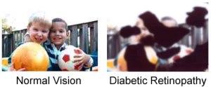 diabetic eye vision