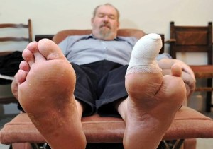 diabetic toe amputation