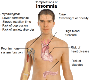 insomnia comps