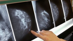 mammogram-breast-cancer-x-ray-exlarge-169