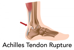 achilles-tendon-rupture
