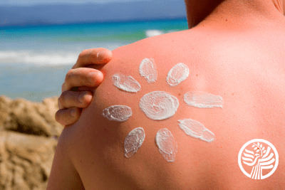 Sunburn Help with Vitamin D