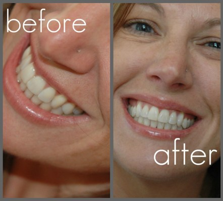 My brighter smile with Crest 3D White 2 Hour Express Whitestrips