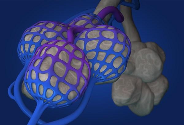 Alveoli - VQ Mismatch
