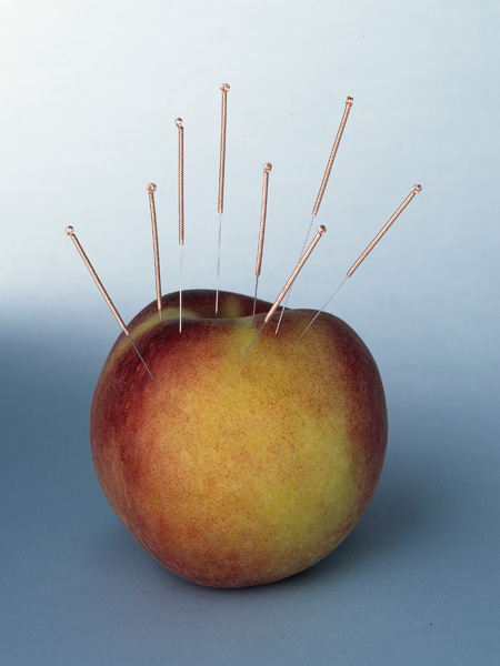acupuncture weight loss
