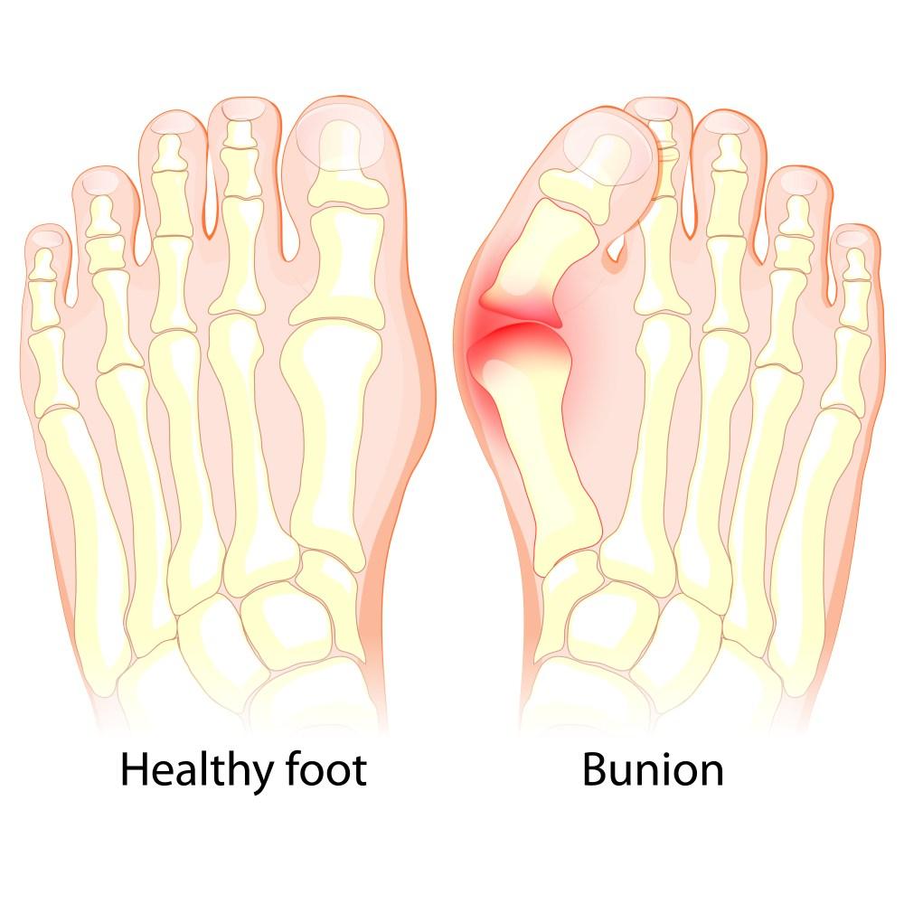 medium resolution of the u201cbunion blog u201d jewell chiropractic diagram of bunion