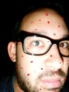 Chickenpox as an adult is the blurst.