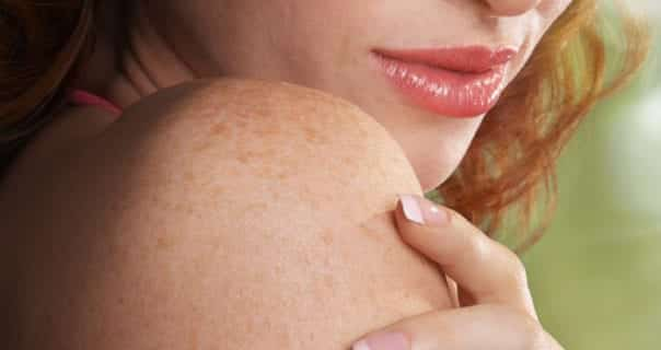 List of Common Skin Diseases and their Symptoms