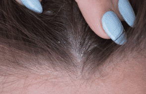 What Causes Dandruff and know How to Treat this at Home?