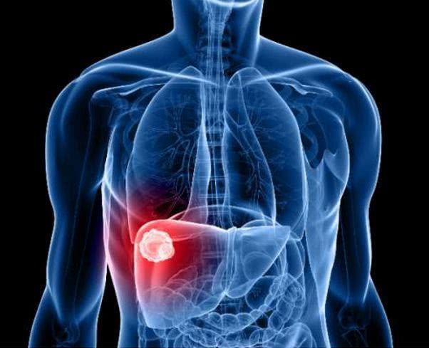 PERIGO – Porto Velho é a 8º capital do país em casos de Hepatite