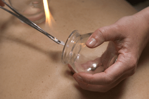 Cupping300x199