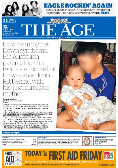 นสพ. The Age ฉบับ 1 ส.ค. 2014 เสนอข่าวสองสามีภรรยาออสซี่ทิ้งลูกดาวน์ซินโดมไว้ให้หญิงผู้รับจากคลอดชาวไทยเลี้ยงดู