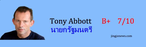 635-31 01 Tony