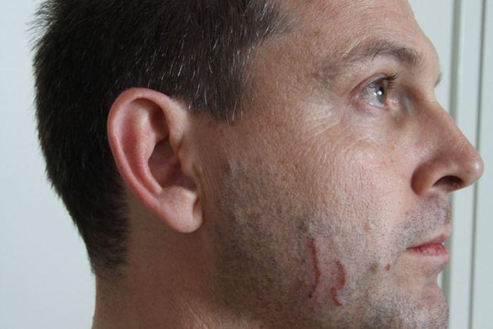 ภาพรอยข่วนที่ใบหน้าของนาย Gerard Baden-Clay ในขณะเข้าแจ้งความ : ภาพจากสำนักข่าว ABC